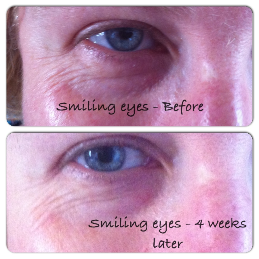 stratum c eye serum reducing wrinkles